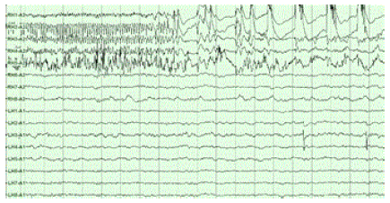 Epilepsy- right hippocampal seizure onset