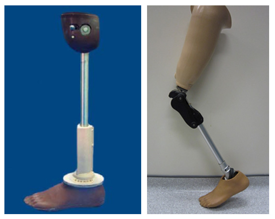 Low cost prosthetic limbs