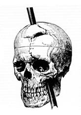 Phineas gage - 1868 skull diagram
