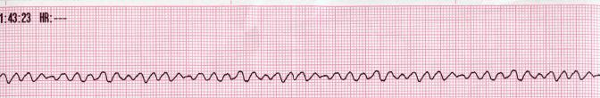 Lead II rhythm generated ventricular fibrilation VF