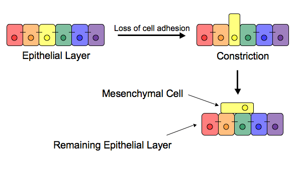 Epithelial–mesenchymal transition scheme