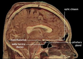 LocationOfHypothalamus