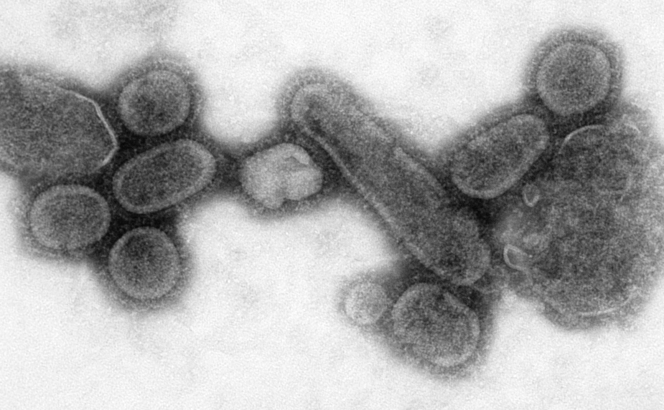 An electron micrograph of the virus that caused Spanish influenza