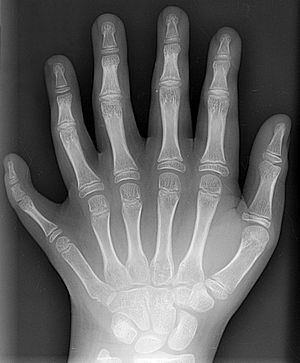 Polydactyly 01 Lhand AP