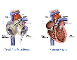 Graphic of the SynCardia temporary Total Artificial Heart beside a human heart