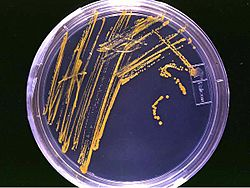 Agar plate with colonies