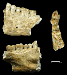 Beeswax as Dental Filling on a Neolithic Human Tooth - Journal.pone.0044904.g001
