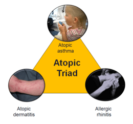 Atopic triad 2.PNG